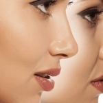 لیفت بینی چیست