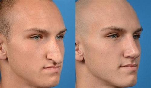 جراح پلاستیک بینی