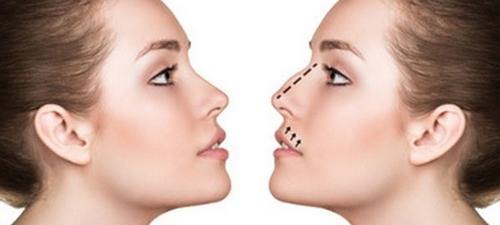 عمل پلاستیک بینی بدون درد و کبودی