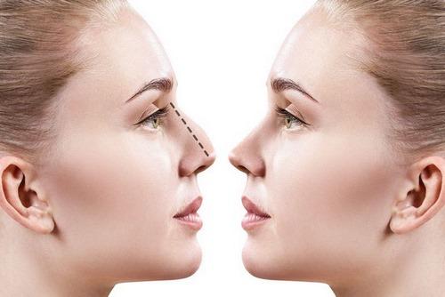 جراحی پلاستیک بینی بدون درد و کبودی