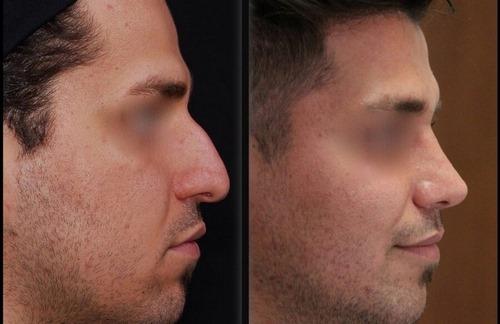عوارض جراحی پلاستیک بینی