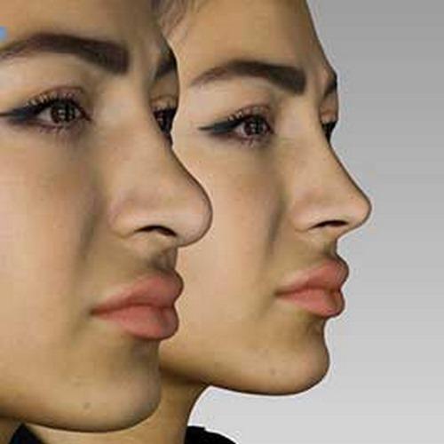 هزینه جراحی بینی با اسکن ۳ بعدی