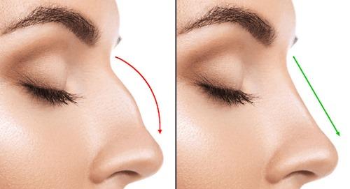 جراحی بینی با اسکن ۳ بعدی در مشهد