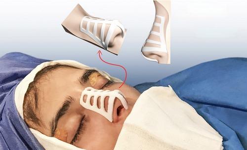 انواع جراحی بینی با قالب کنترلی