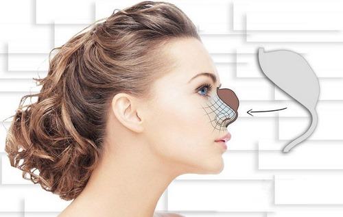 هزینه جراحی بینی با قالب کنترلی