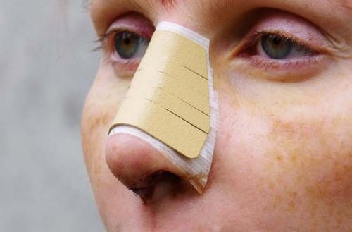 جراحی بینی بدون گچ گرفتن چگونه است؟