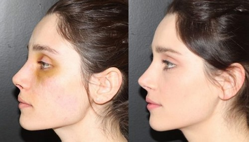 دکتر جراحی بینی بدون گچ گرفتن
