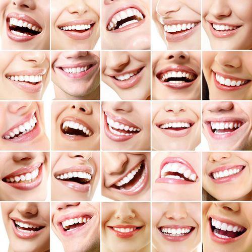 زیبایی لبخند چیست