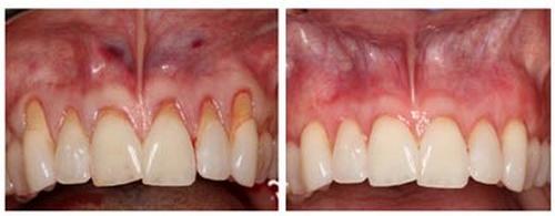 دندانپزشکی زیبایی لبخند
