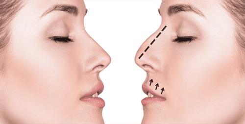 متخصص جراحی بینی مشهد