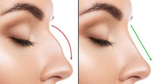 عوارض تزریق آنزیم به بینی