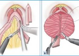 سیستکتومی