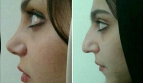 دکتر شیما کمندی جراح بینی در مشهد
