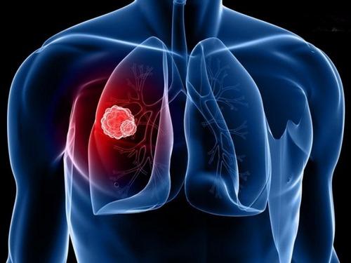آمبولی ریه چه علائمی دارد