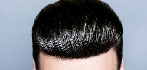 کاشت مو fug چیست