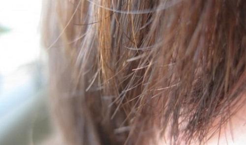 دلایل ایجاد مو خوره