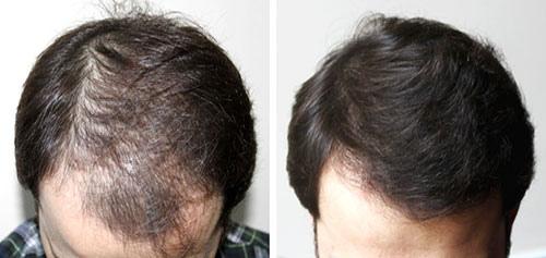 مراقبت بعد از کاشت مو fit