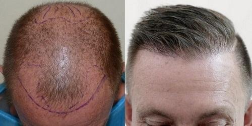 روش کاشت مو fit