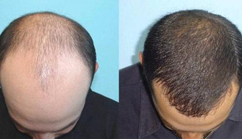 کاشت مو fit چیست