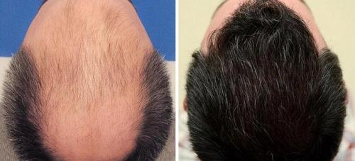 بهترین روش های کاشت مو