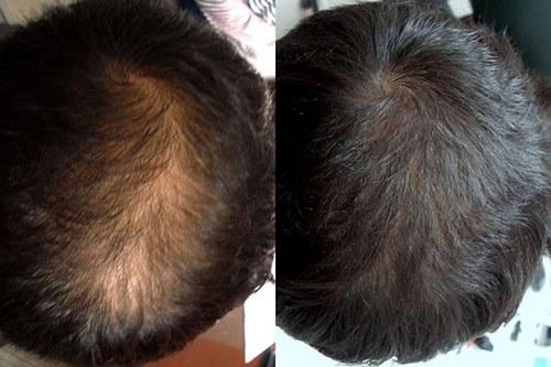 روش های کاشت مو جدید