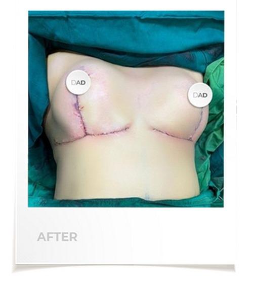 مراقبت های پس از جراحی سینه