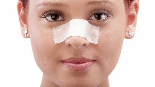 چسب بینی بعد از عمل