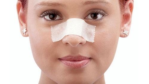 اهداف گذاشتن گچ روی بینی