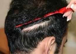 کاشت مو به روش ترانسپلنت