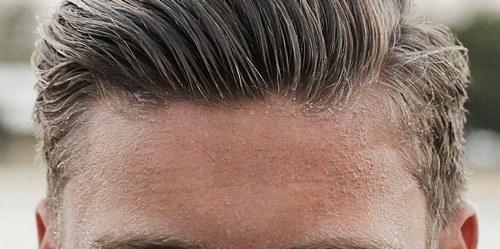 عوارض کاشت مو به روش ترانسپلنت
