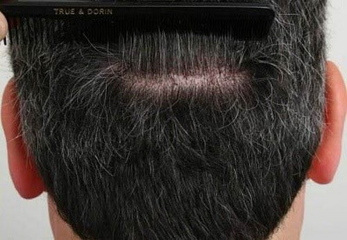 سوالات متداول درباره ی کاشت مو به روش ترانسپلنت