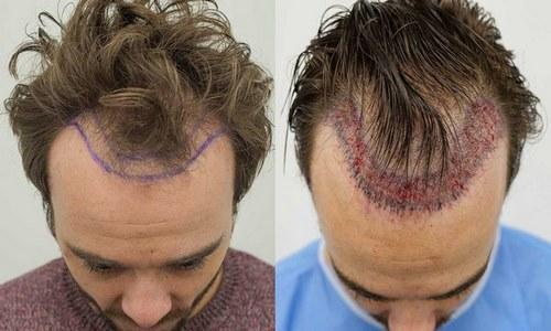 انواع کاشت مو به روش ترانسپلنت