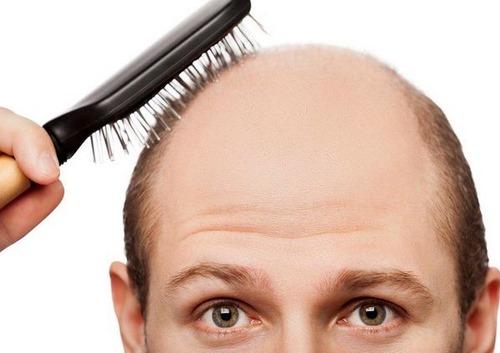 تعبیر از دست دادن مو