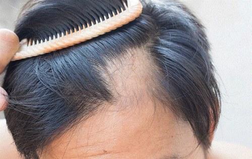 قرص جلوگیری از ریزش مو